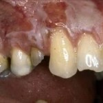 Gums Burnt by Bleaching agent
